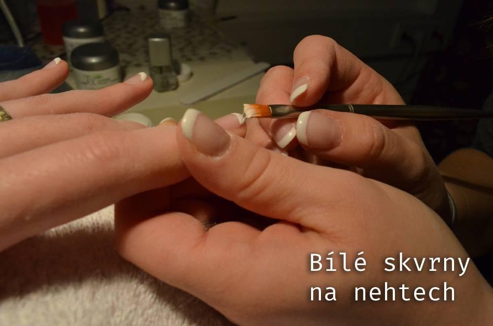 Co prozradí bílé skvrny na nehtech a dá se jich zbavit?