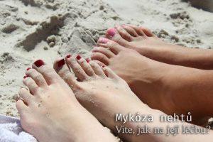 Mykóza nehtů: Jak ji poznat a léčit